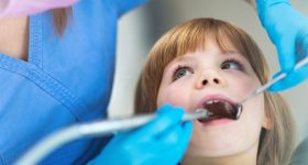tips for dentist visits in kids